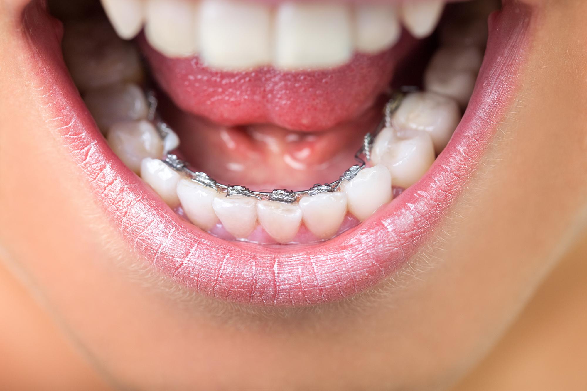 orthodontie adule